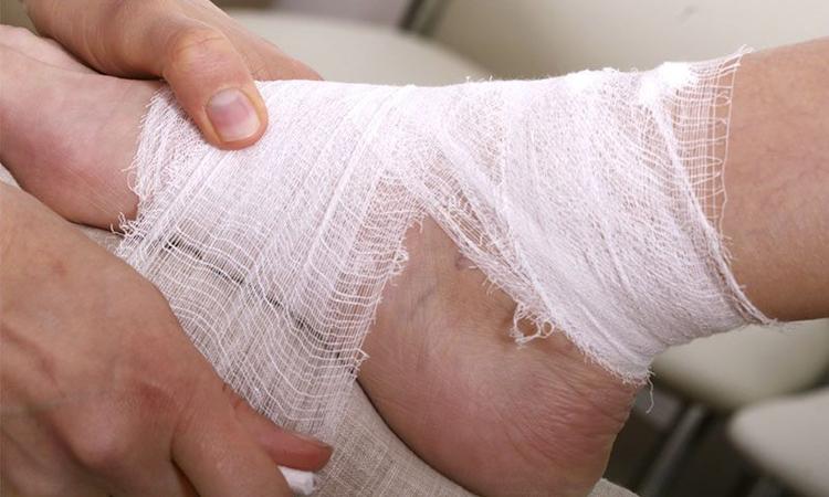Язвы на ногах у диабетиков