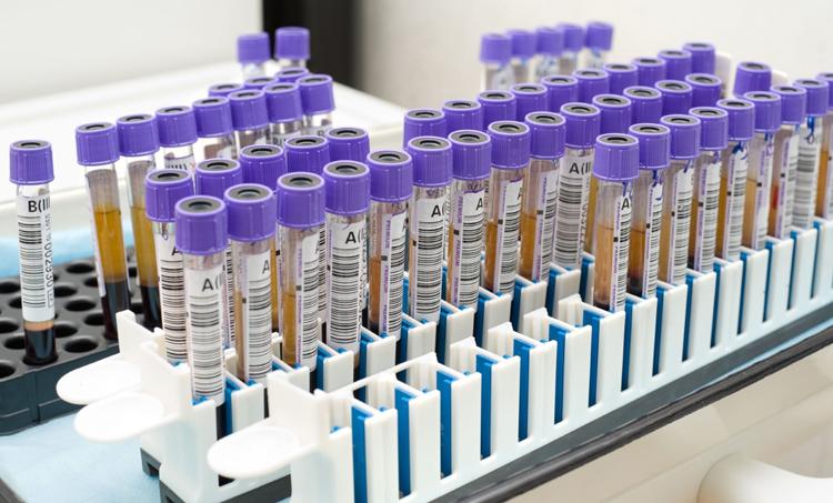 Пробирки для анализа крови