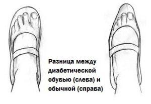 выбор обуви для диабетиков