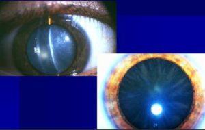 диабетическая катаракта как выглядит