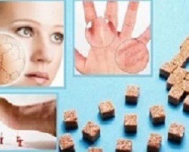 кожа при диабете