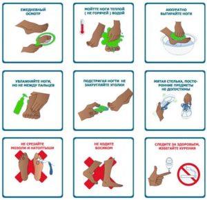 кожа при диабете_грибок на ногах