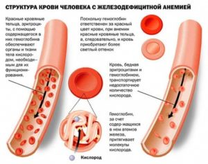 анемия_структура крови